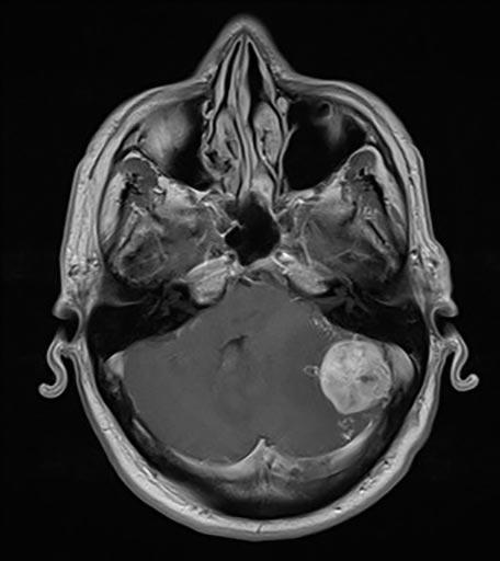 Μαγνητική τομογραφία ασθενούς - Πριν