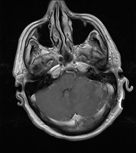 Μαγνητική τομογραφία ασθενούς - Μετά